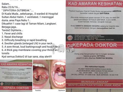 社交媒體廣傳吉打州傳疑似白喉症的帖子,提醒民眾小心慎防。
