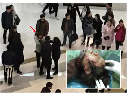 解女(箭頭示)理論時遭男童父親毆打,致其頭部受傷流血(小圖)。