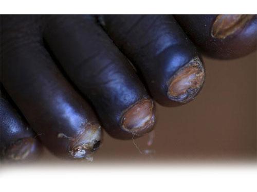 一名沙蚤病小女孩患者的腳,我們可以看到,腳趾甲已完全潰爛。