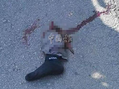 傷者的斷腳在事發後與傷者一起送往醫院。