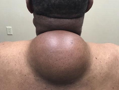 巨型脂肪瘤大小猶如一顆保齡球。