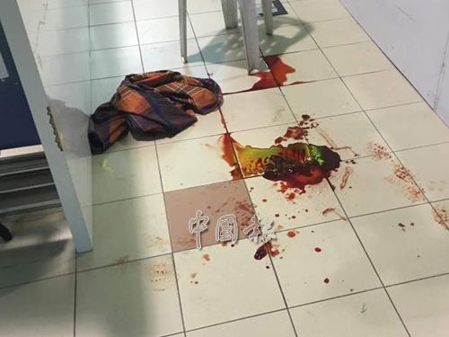 金店保安人員被匪徒開槍打傷大腿,現場留下大灘血跡。