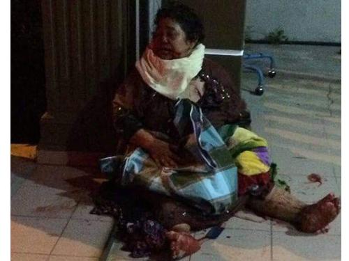 女傷者跌坐在地上,等候送院救治,現場可見不少血跡。