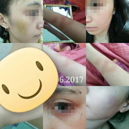 女子上傳照片,展示自己慘遭家暴。