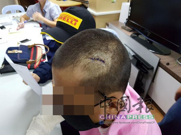 王姓少年遭人以籐棍痛打,頭部縫了7針。