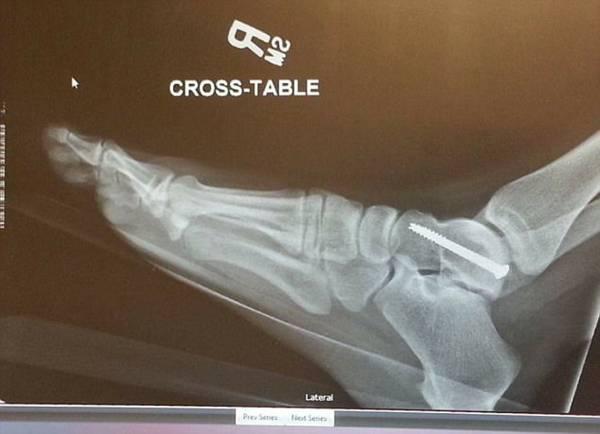兩年過去,如今的奧德拉,無法站超過4個小時,圖為奧德拉腳踝的X光圖。