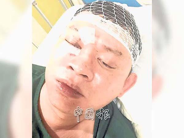 由於傷勢嚴重,受害者杜康維在醫院搶救期間,曾昏迷了一天。