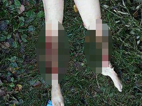 殘屍被棄河邊,一邊乳房和兩邊小腿肌肉,俱被割走。