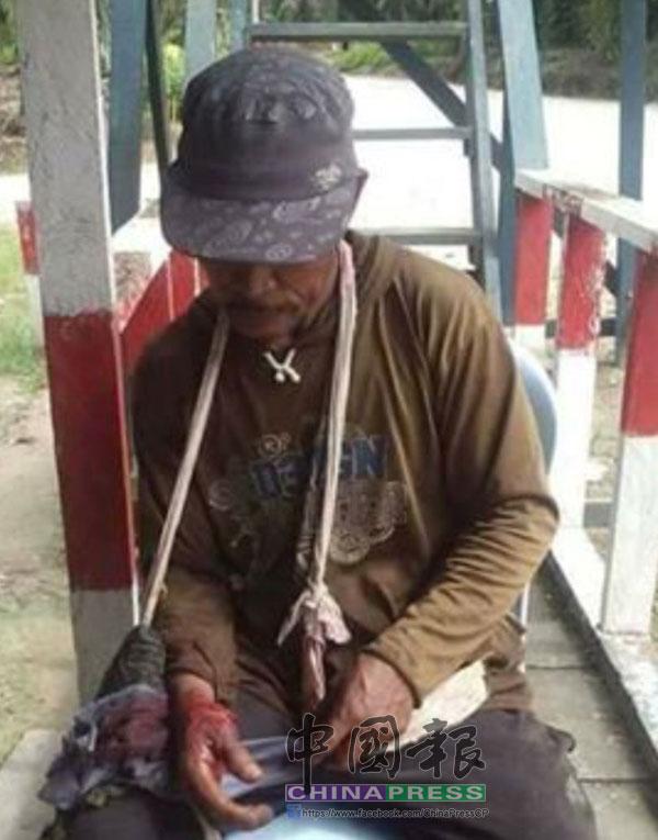 右手掌遭鱷魚咬的皮開肉破男子,等待工頭送往求醫。