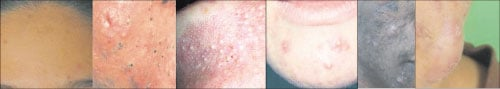 庄沁純醫生分析,所謂的痘痘暗瘡,簡單來說就是毛囊的細菌慢性發炎,主要可分為以上幾種非炎症性的粉刺以及發炎性的皮疹、膿皰、結節、囊腫等。