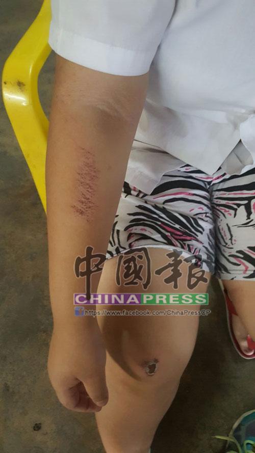 黃文標14歲女兒的手及腳,在跳車時擦傷。