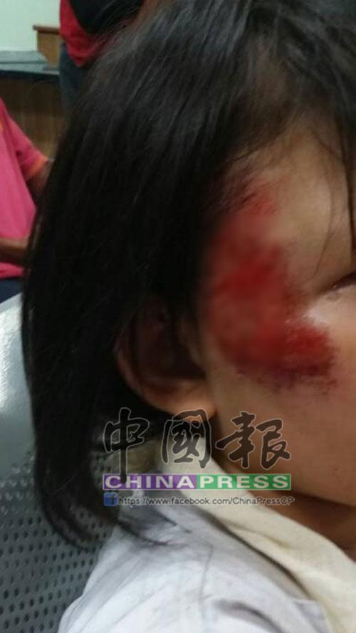 9歲的女孩,傷勢較重,臉部受傷。