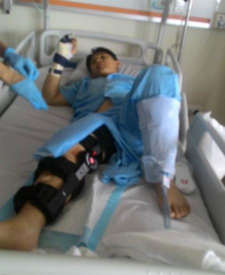男子右腳的傷口,從大腿延伸至小腿,相當嚴重。(取自面子書)