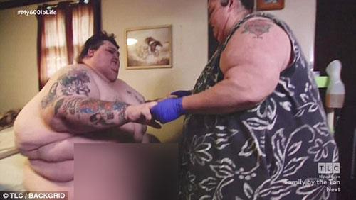 薩頓(左)減肥前重達324公斤,琪瑟減肥前重達246公斤。