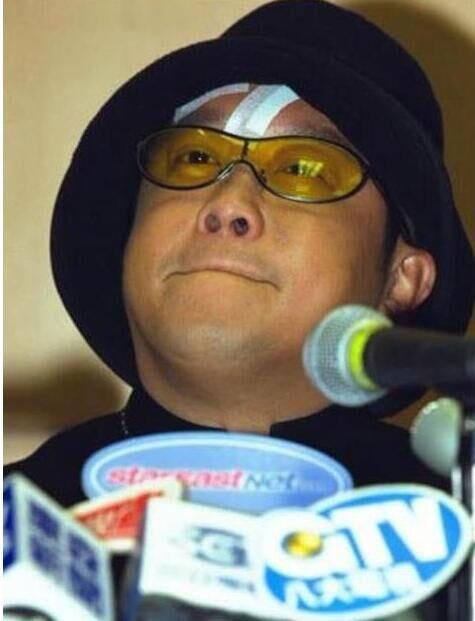2001年,曾志偉在香港某酒吧突遭數位大漢伏擊,導致面部、額頭及嘴角多處受傷,一共縫了29針。