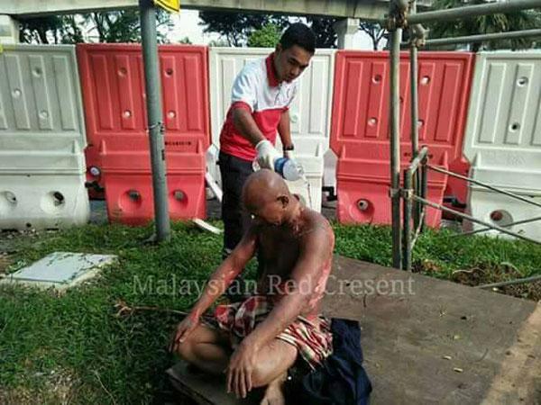 傷者全身約30%被灼傷,主要傷口圍繞在背部與頸部。(照片取自面子書)