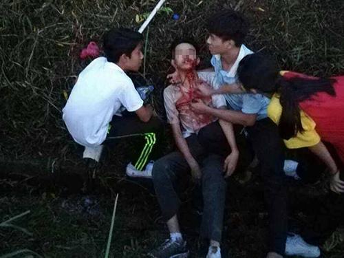 中學生被毆打後,滿臉是血,目前仍在加護病房治療。