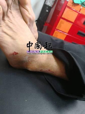老翁的腳有明顯的擦傷傷痕。