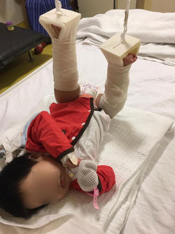 女嬰仍需留院治療,而且雙腳包紮吊起。取自Muhsin Zaidi面子書)