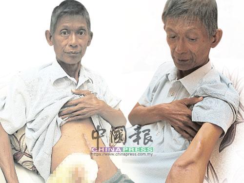 左圖:張志明的大腸也受到病毒感染而需進行手術,已將大腸外露,並需定時更換袋子。 右圖:張志明每週洗腎3次,每次4小時。