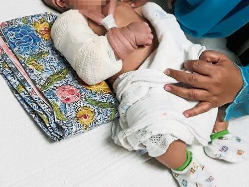 男嬰莫哈末扎欣小右手疑被扭斷,目前在醫院治療。