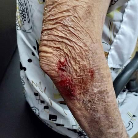 一名女子和老年人在上下樓梯時跌倒,不幸擦傷手肘、膝蓋和鼻樑。
