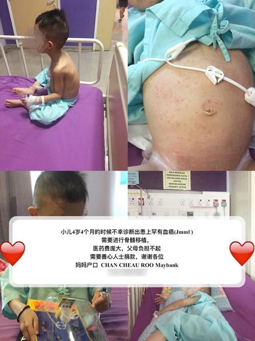 男童患上罕見血癌,身體出現淤青及肚子腫脹,急需款項進行骨髓移植手術。