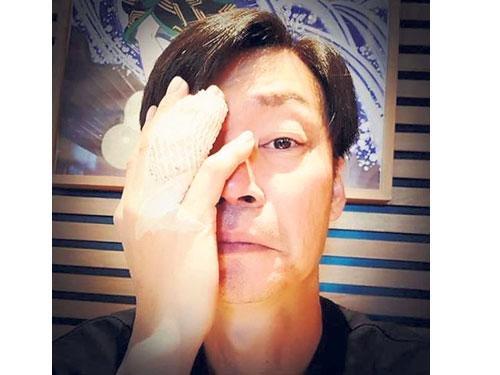 李國煌在IG貼出手指受傷的圖片。