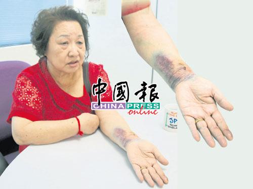 王玉玲遭匪徒連人帶車擄走,隨后更是發生車禍,所幸沒危及性命。王玉玲左手仍有被匪徒咬傷的齒印,手部也出現大片瘀血。