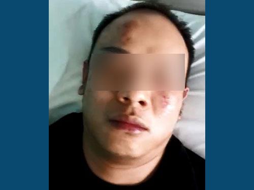 華裔男子慘遭朋友拖累,被15名大耳窿毆打至重傷。