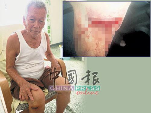蔡仁榮展示其膝蓋的傷口,傷口縫了9針。