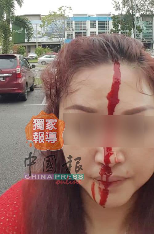 婦人遭男中介的兄長以鐵棍擊打頭部,鮮血流個不停,在警局錄口供時還一度昏眩。