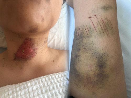 谭安宇颈项部分有擦伤及大腿因撞击,出现大片瘀青。