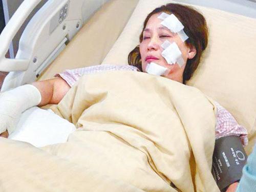 59歲的楊盼盼拍戲時臉部遭燒傷,傷勢比較嚴重。