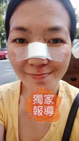 女事主的鼻梁惨被打断。