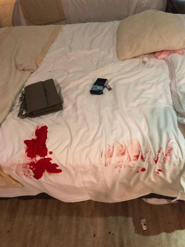 染有血渍的床。
