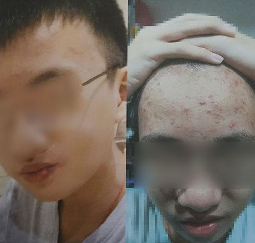 其中一名受害者停用产品后,皮肤状况变差。