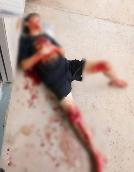 其中一名伤者被砍,身上及脚部受伤。