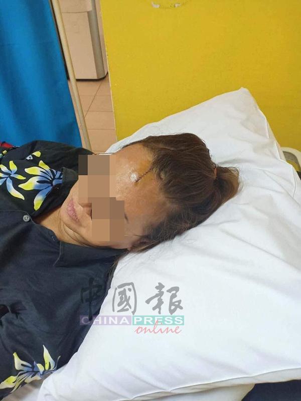 华裔妇女事后被缝补10余针,目前已无大碍。