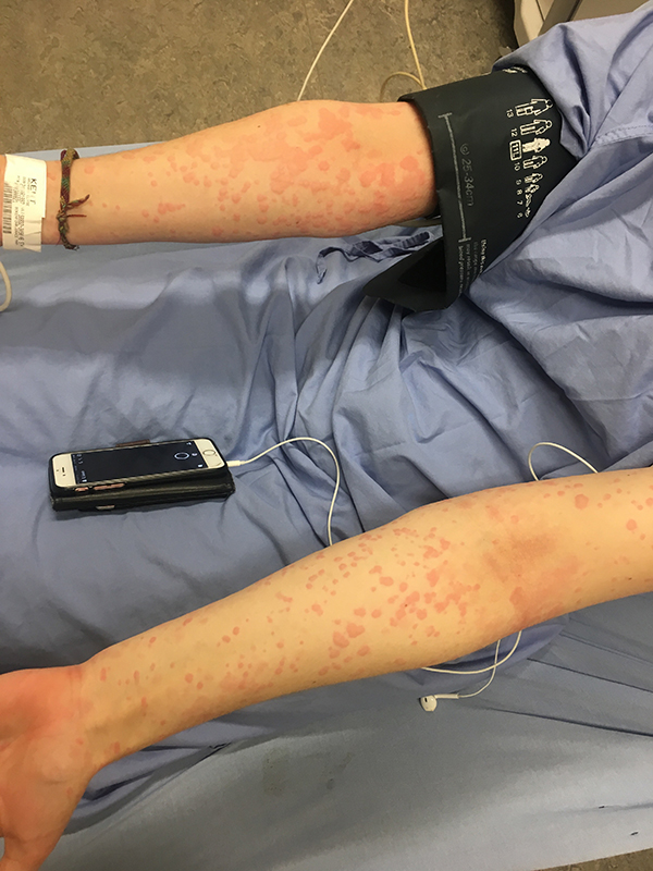 """阿里安娜罹患""""寒冷性荨麻疹"""",只要稍微接触寒冷的物体,例如雪、冷空气等等,就会爆发荨麻疹,导致全身红肿、灼热、发痒。"""