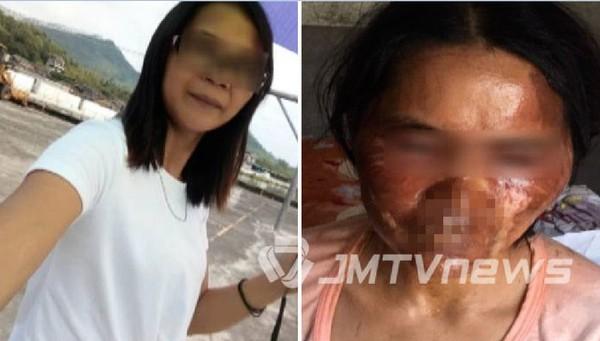 汤姓女子面部严重烫伤,皮肤十分红肿。