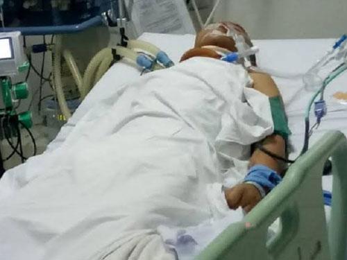 罗比在医院昏迷一周不治。