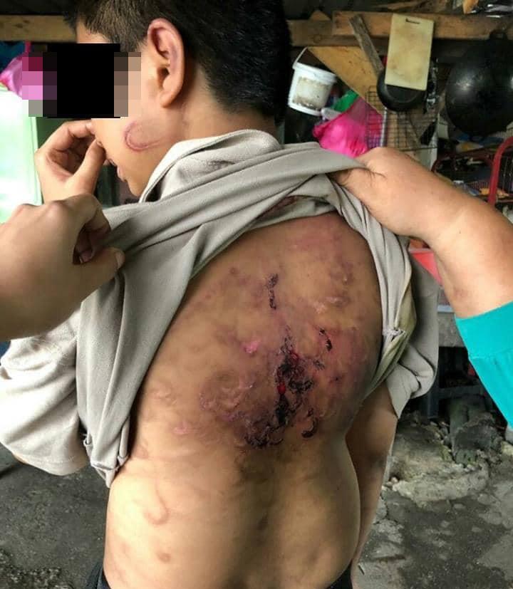 男童背部被打至受伤流血,伤势骇人。
