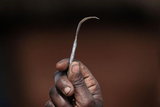 割礼工具。