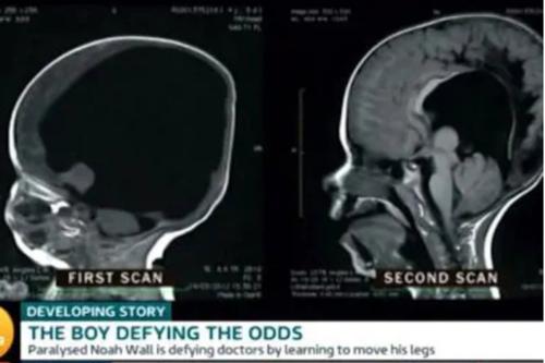 诺亚的大脑如今长回80%,让人惊讶不已。