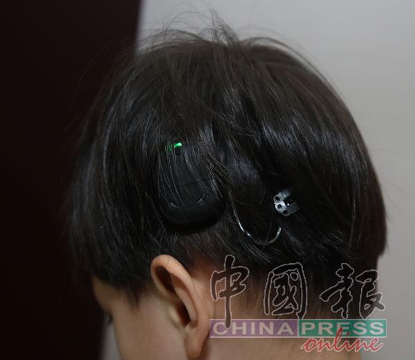 温恺贤人工耳蜗的电池必须定期更换,一个月电池开销约150令吉至250令吉。