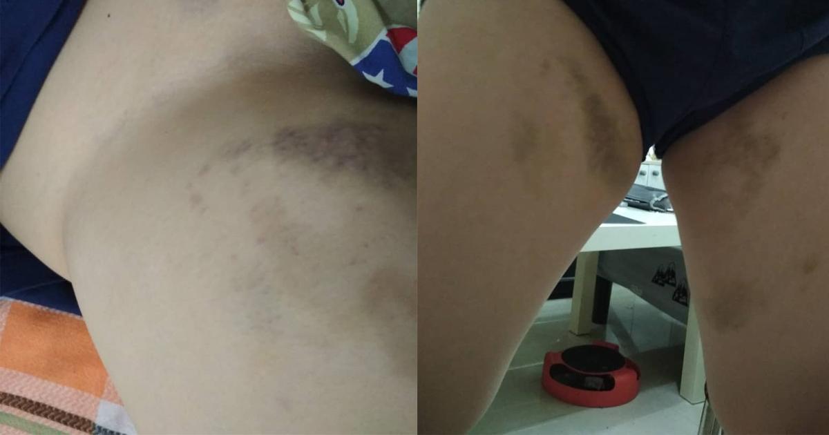 被霸凌的13岁学生下体与大腿内侧严重瘀伤。