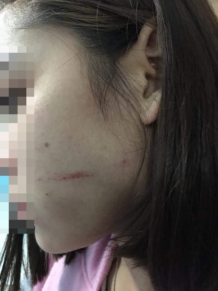 女子脸颊刮伤,心有余悸。