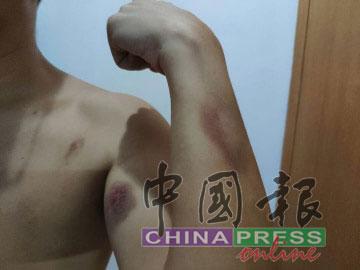 冯先生全身布满瘀青伤口。