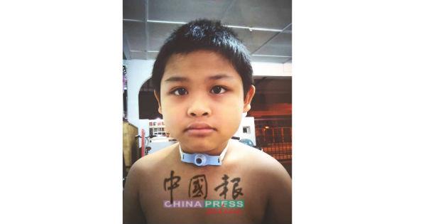 陈槟咏小弟弟急需经费动手术。